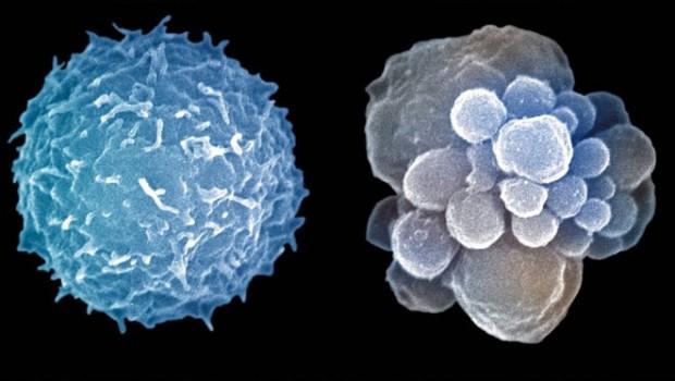 Cuerpo íntegro-Apoptosis 1.0 Por una muerte celular programada